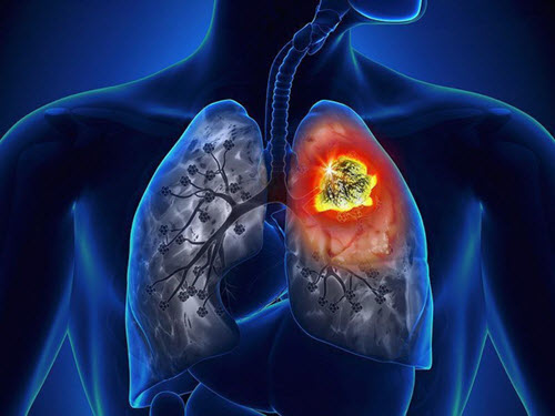 Thuốc nam điều trị ung thư phổi di căn. Thảo dược trị ung thư hiệu quả