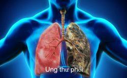 Thuốc ngừa ung thư phổi Tarceva hiện khá phổ biến