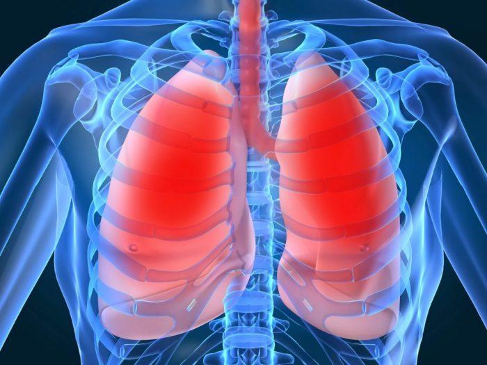 Ung thư phổi giai đoạn cuối ảnh hưởng tới tính mạng bệnh nhân
