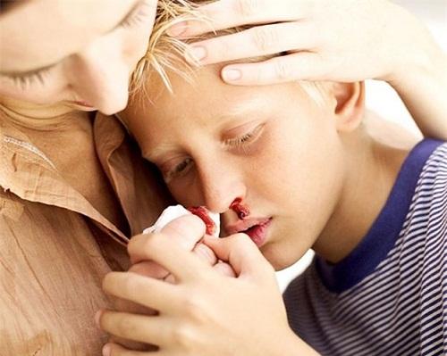 Triệu chứng của ung thư máu ở trẻ em là vấn đề nhiều phụ huynh quan tâm