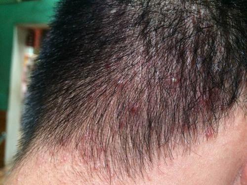 Nổi nhiều mụn ở dau đầu có thể là biểu hiện ung thư da đầu