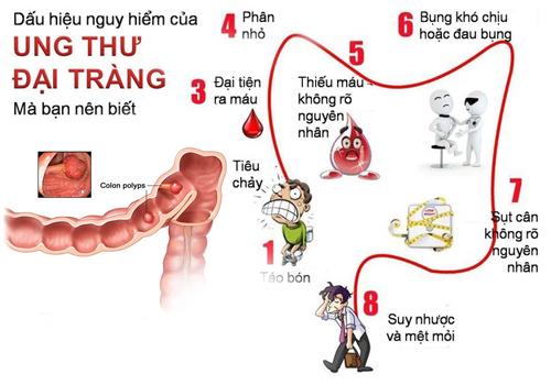Triệu chứng ung thư đại tràng giai đoạn 2