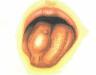 Triệu chứng ung thư lưỡi giai đoạn đầu và phương pháp điều trị bệnh