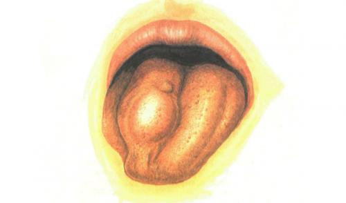 Triệu chứng ung thư lưỡi giai đoạn đầu thường rất khó phát hiện.