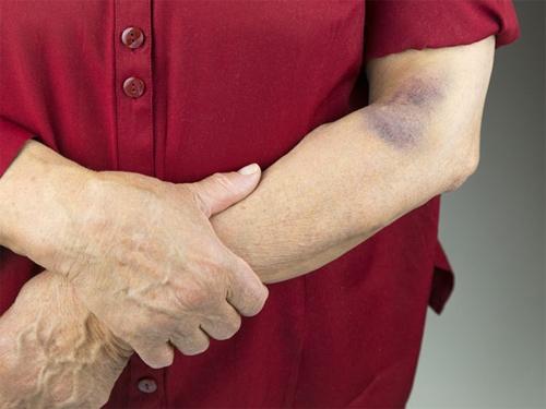 Triệu chứng ung thư máu giai đoạn cuối biểu hiện rõ rệt.