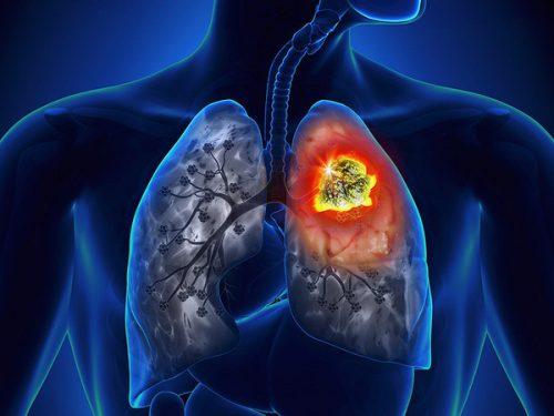 Ung thư phổi có tỉ lệ tử vong rất cao, chỉ đứng sau ung thư gan.