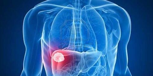 Ung thư gan di căn lên phổi