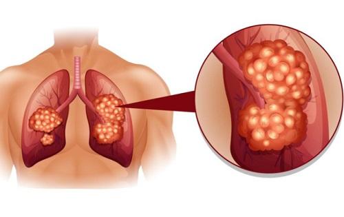 Hình ảnh ung thư màng phổi tiên phát