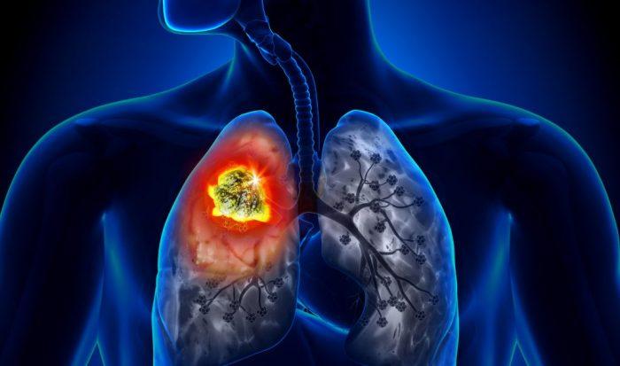 Ung thư phổi di căn hạch trung thất nguy hiểm tới tính mạng