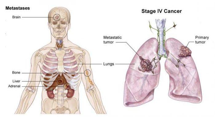Ung thư buồng trứng di căn phổi: Dấu hiệu và cách điều trị