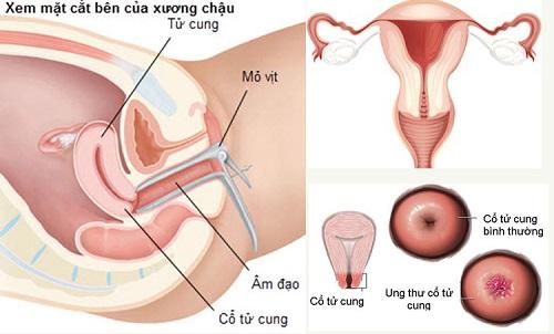 Ung thư cổ tử cung có chết hay không? Cách chữa ung thư tử cung