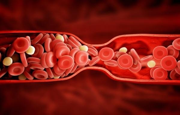 Ung thư cổ tử cung di căn lên phổi dễ xuất hiện các cục máu đông