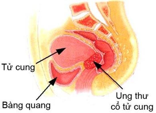 Ung thư cổ tử cung giai đoạn IV di căn gây ảnh hưởng đến bàng quang