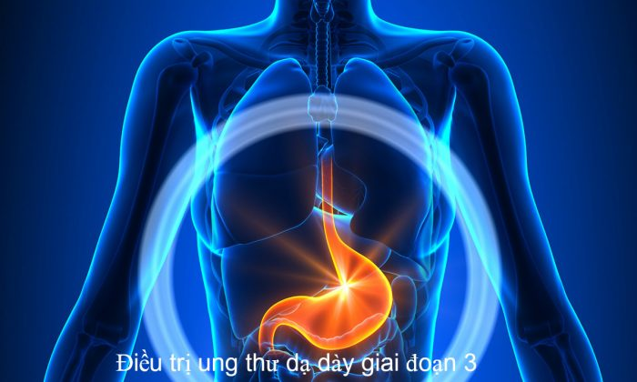 Ung thư dạ dày giai đoạn 3 có thể chữa trị bằng biện pháp Đông y
