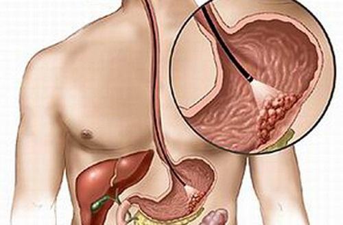 Ung thư dạ dày giai đoạn cuối di căn thế nào? Có chữa được không