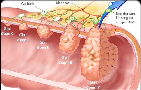 Hình ảnh ung thư đại tràng