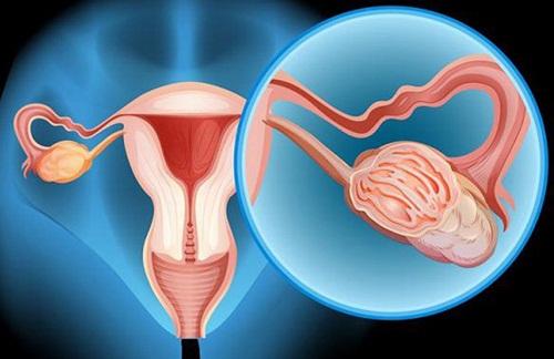Bệnh ung thư buồng trứng có thể di truyền.