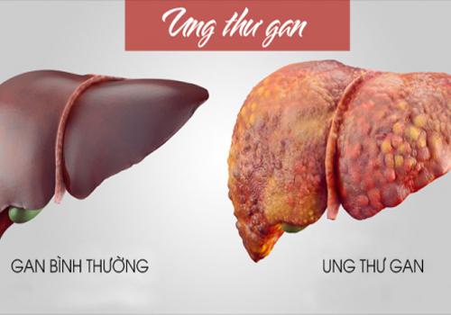 Bệnh ung thư gan có lây được không? Nguyên nhân bệnh ung thư gan
