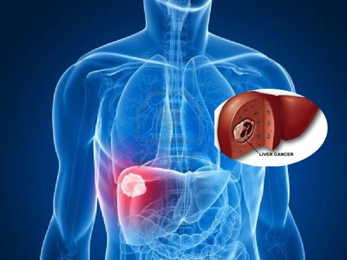 Y học hiện đại có nhiều phương pháp chẩn đoán ung thư gan