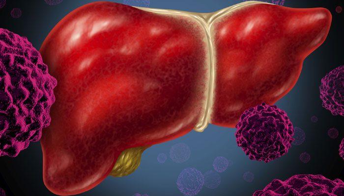 Ung thư gan di căn sống được bao lâu?