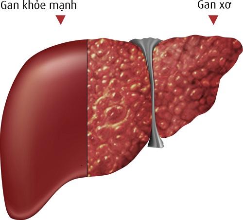 Hình ảnh mô phỏng bệnh nhân ung thư gan giai đoạn 2