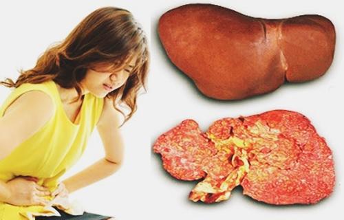 Đau bụng là một trong các biểu hiện của ung thư gan giai đoạn đầu