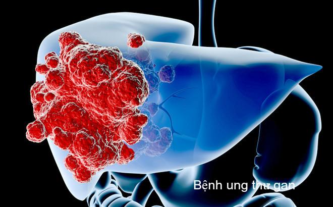 Ung thư gan sau phẫu thuật rủi ro không? Thực đơn cho người mổ gan