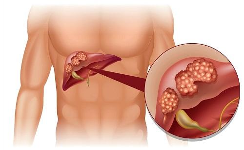 Chữa ung thư gan bằng thuốc Nam mang lại hiệu quả cao