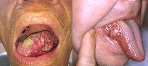 Ung thư lưỡi di căn mức độ lây lan nhanh chóng, các khối u vượt quá 6cm