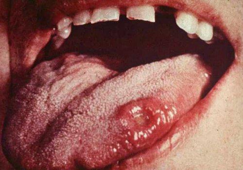 Ung thư miệng sống được bao lâu