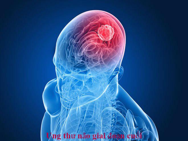 Ung thư não giai đoạn cuối nguy hiểm không? Triệu chứng của bệnh