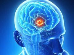 Ung thư não là một căn bệnh vô cùng nguy hiểm.