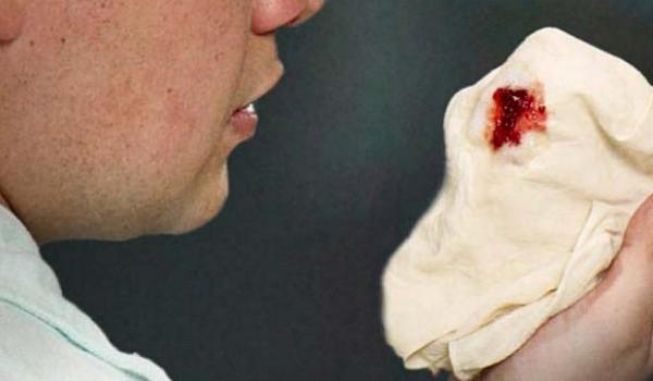 Ho ra máu là một trong những triệu chứng của ung thư phế quản di căn màng phổi.