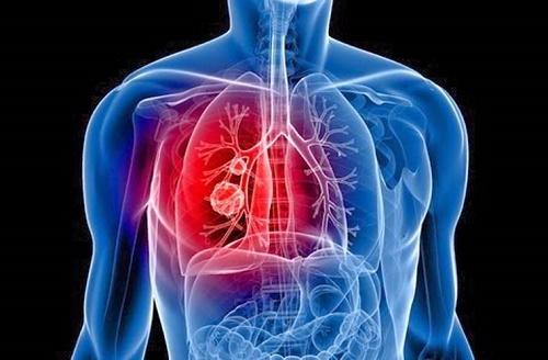 Ung thư phế quản sống được bao lâu còn phụ thuộc vào thời gian phát hiện bệnh