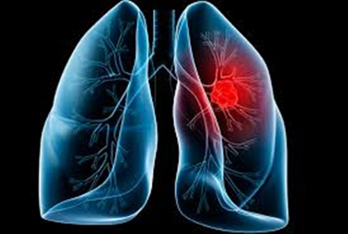 Ung thư phế quản sống được bao lâu