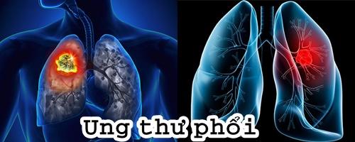 Ung thư phổi là căn bệnh nguy hiểm bậc nhất có tỷ lệ tử vong rất cao