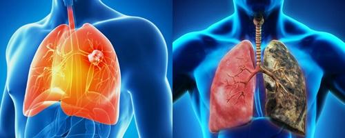 Ung thư phổi chia thành hai dạng là ung thư phổi tế bào nhỏ và ung thư phổi không phải tế bào nhỏ