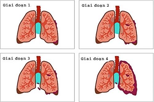 Ung thư phổi không phải tế bào nhỏ có bốn giai đoạn