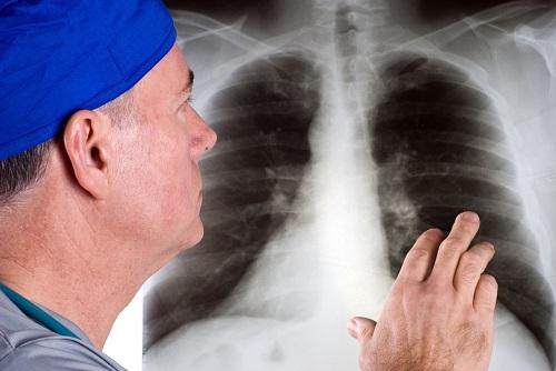 Ung thư phổi có chết không? Các giai đoạn của bệnh ung thư phổi