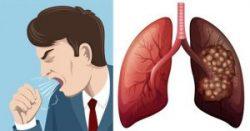 Ung thư phổi dẫn đến ho dai dẳng, khó thở.
