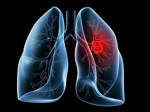 Ung thư phổi di căn có chữa được không là câu hỏi được quan tâm