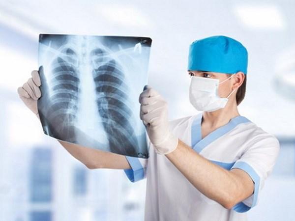 Kiểm tra phim chụp X - quang trước khi tiến hành phẫu thuật ung thư phổi