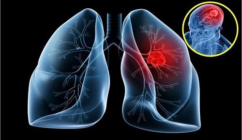 Hình ảnh mô phỏng căn bệnh ung thư phổi di căn lên não.