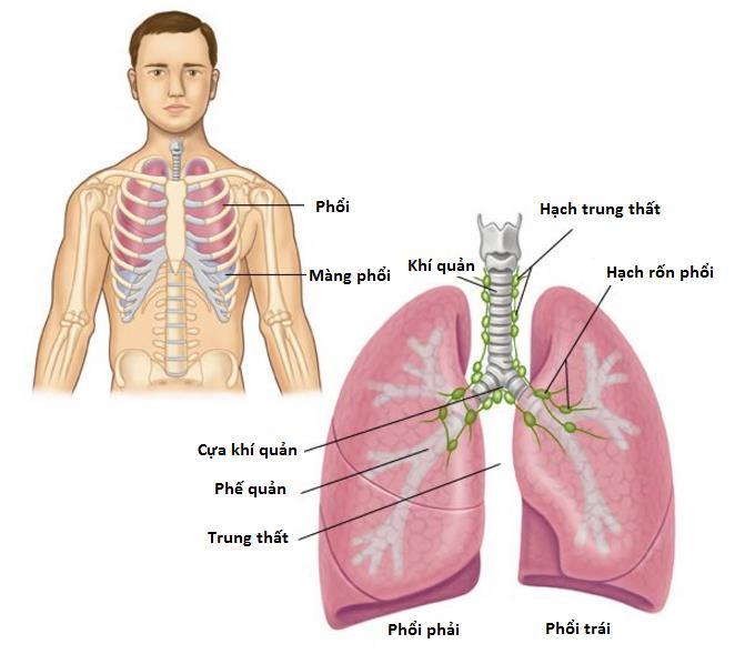 Triệu chứng ung thư phổi di căn não xảy ra ở giai đoạn cuối của ung thư phổi