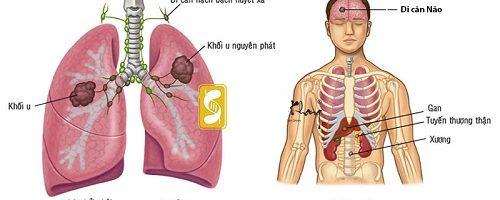 Ung thư phổi di căn vào gan