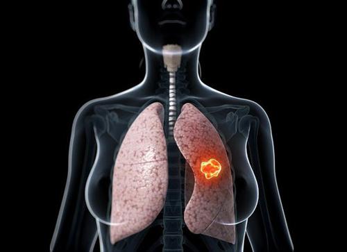Phụ nữ có tỷ lệ mắc ung thư phổi thấp hơn nam giới