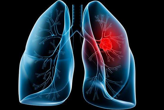 Ung thư phổi lây qua đường nào?