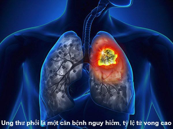 Ung thư phổi nên uống thuốc gì là câu hỏi được nhiều người quan tâm