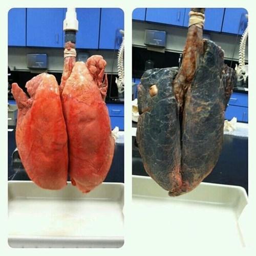 Ung thư phổi sống được bao lâu