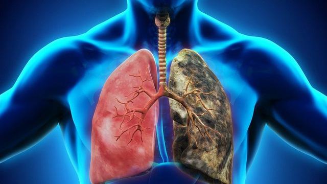 Bệnh ung thư phổi sống được bao lâu?